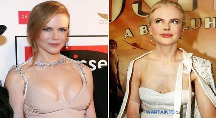 Foto Hot Belahan dada Nicole Kidman Artis Hollywood dengan Implan Payudara Termahal