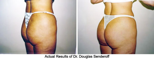 Buttock Implants Before and After Pictures