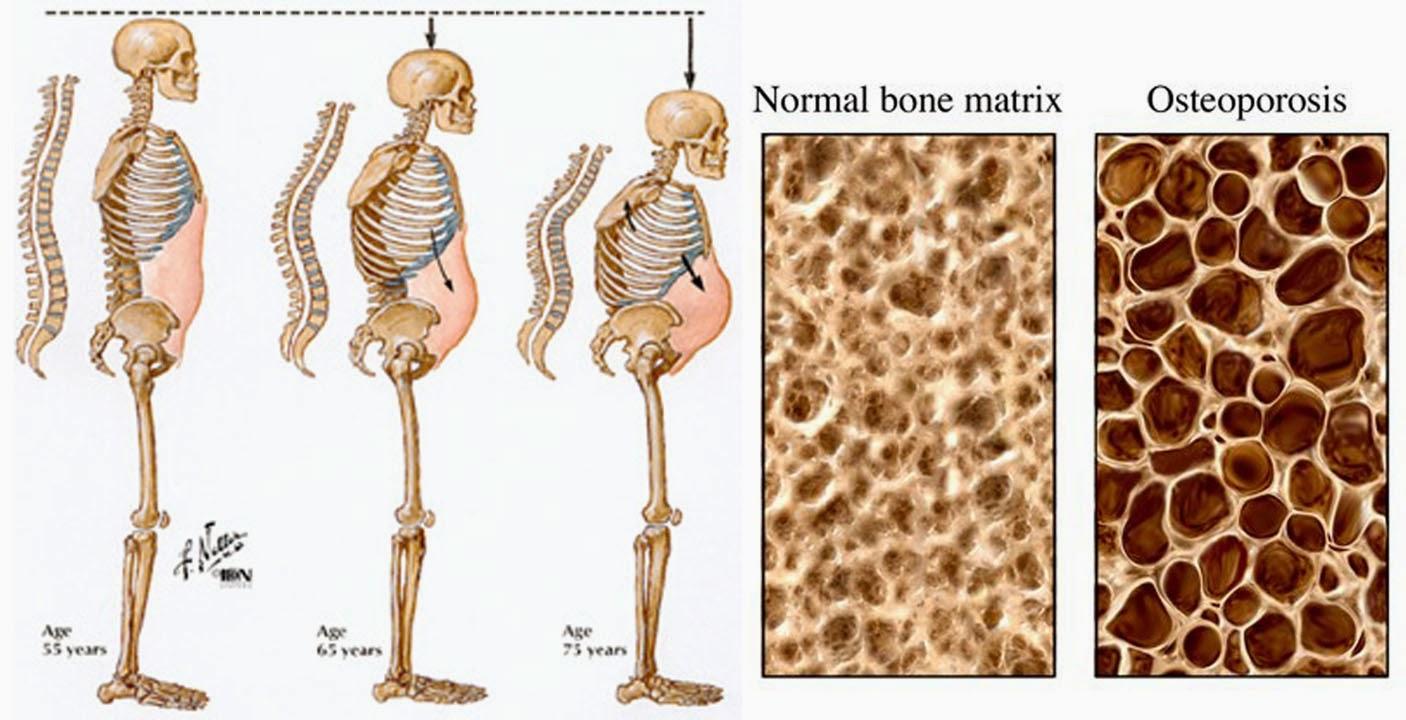 perbezaan di antara tulangh normal dan tulang osteoporosis