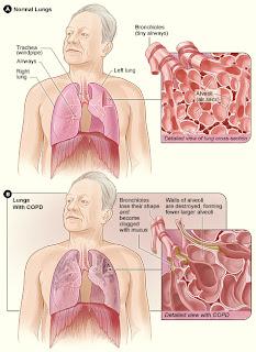 COPD Nursing Care Plan