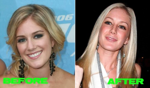 heidi montag before and after people. heidi montag before and after