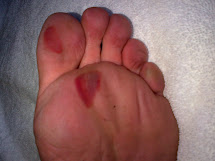 Blood Blister On Big Toe