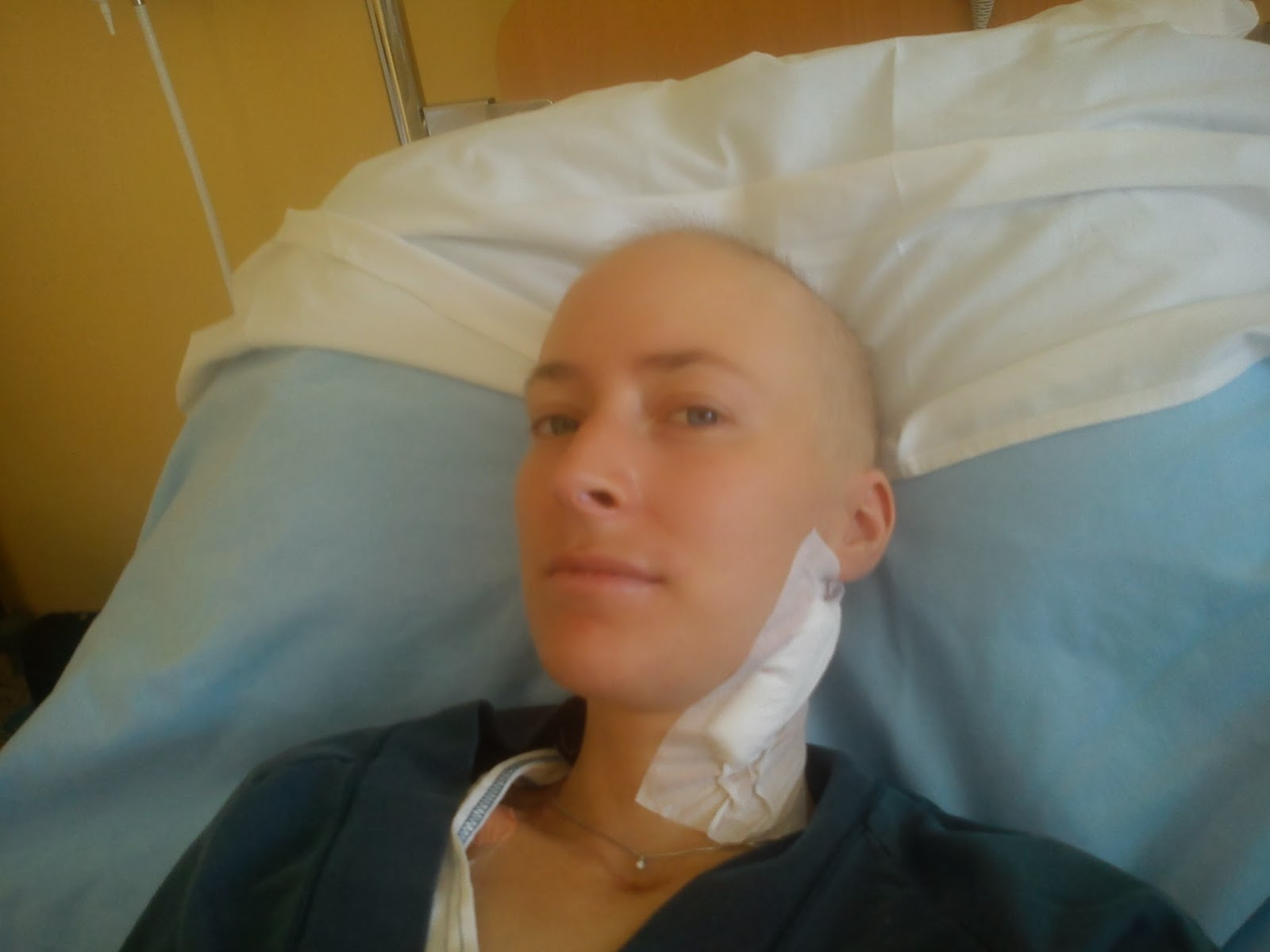 lymfkörtlar halsen cancer