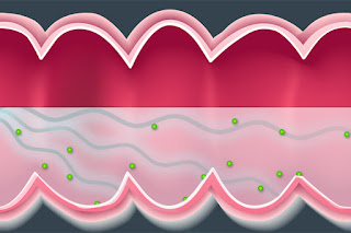 Using Ultrasound To Improve Drug Delivery