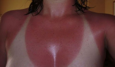 How to treat the skin burned by the sun?