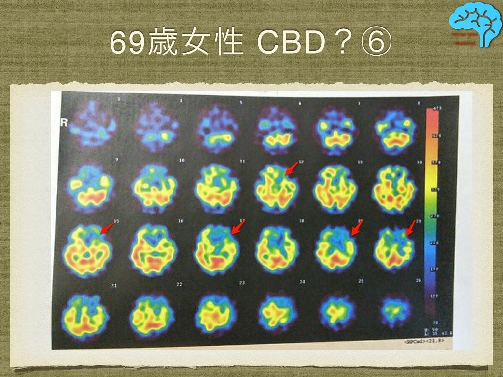 皮質基底核変性症(CBD) SPECTで左右差あり