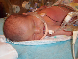 Our Little CDH Fighter Garrett
