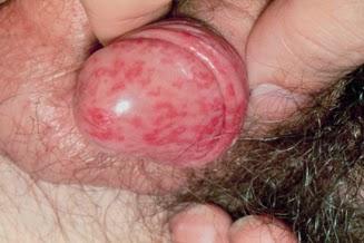 Penyakit Herpes Pada Pria