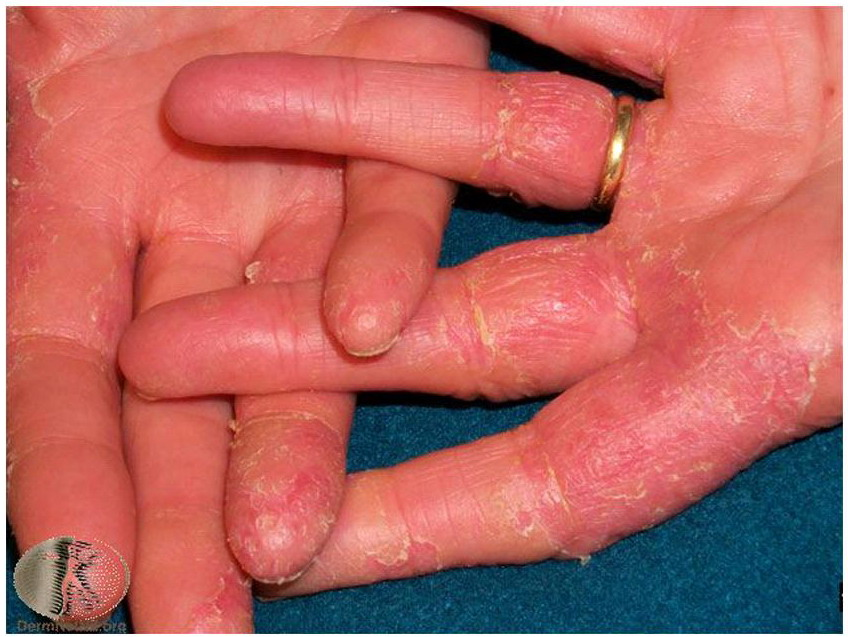 Ring Eczema Of The Hands