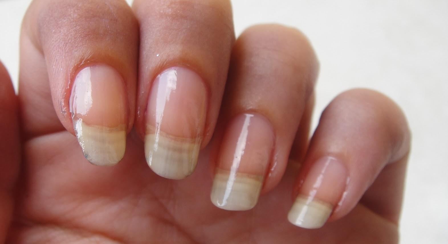 Rimedio efficace contro un fungo tra le dita
