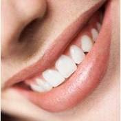 Cara Merawat Gigi,Cara Merawat Gigi berlubang
