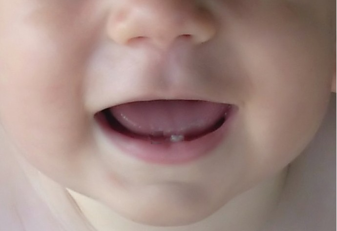 Parenting4Tomorrow: Teething