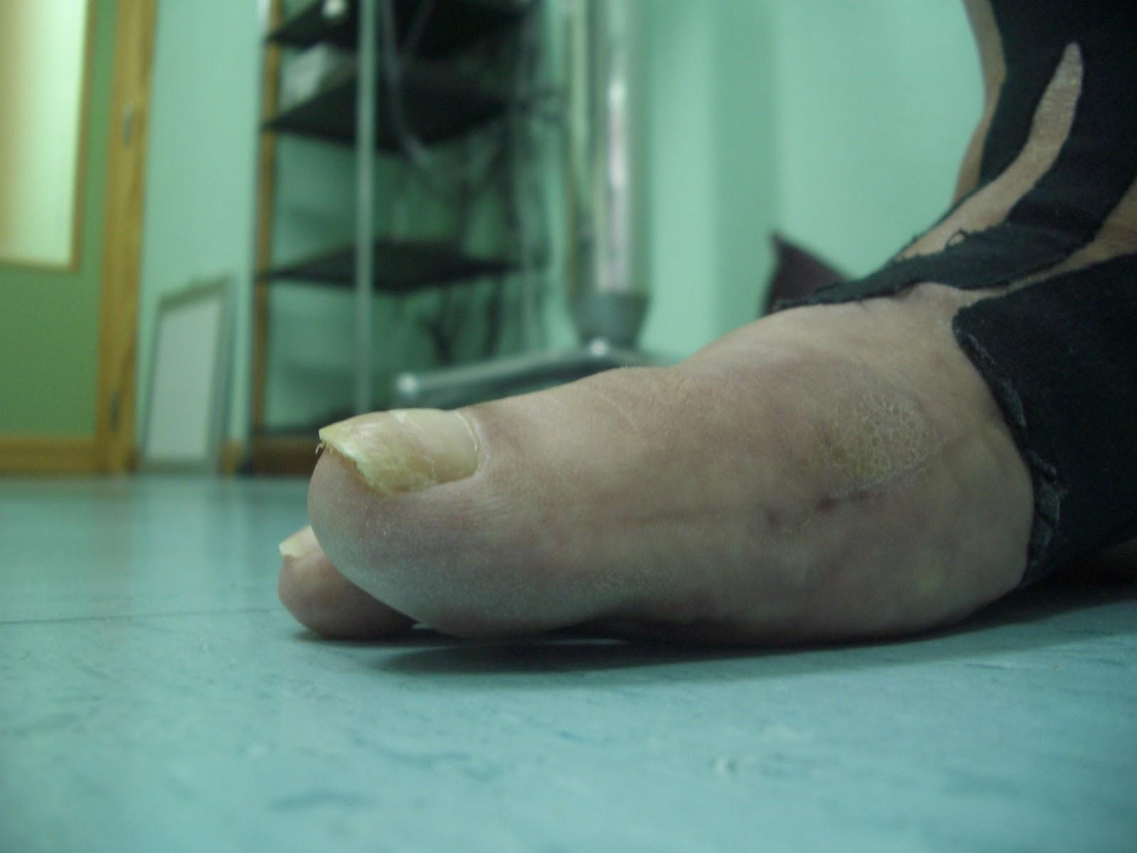 Podo Basas al Día: Hallux Rígidus yatrogénico (Tratamiento ...