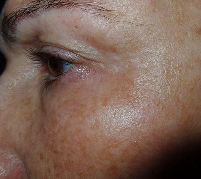 mascarilla facial de facialderm