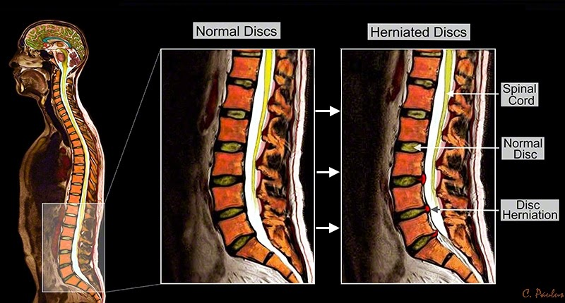 Sagittal Lumbar Spine Color MRI Normal Discs and Disc Herniations