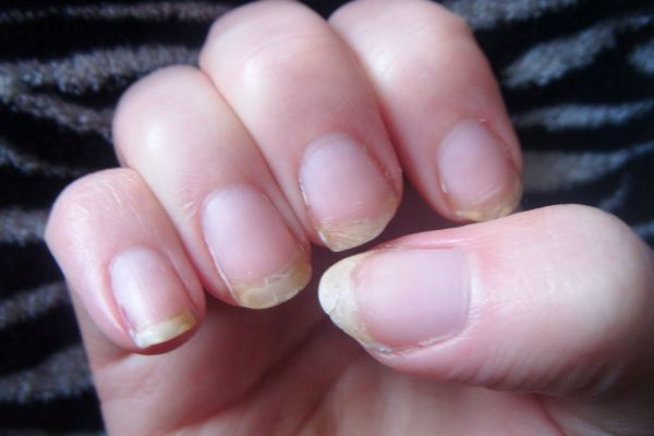 Also Thyroid Disease Leads To Brittle Dry Fingernails That Crack And Split Easily