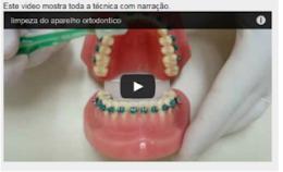 Video mostra como limpar os dentes com Aparelho Ortodôntico