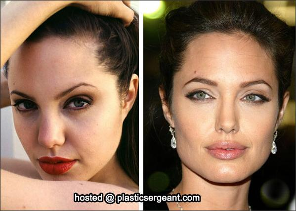 Picture Gallery: Angelina Jolie Plastic Surgery Before and ...