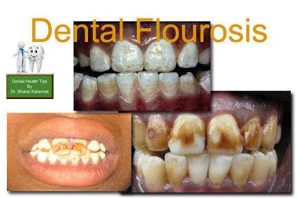 effect of flourosis on teeth health