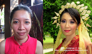 ZILA_Before & After
