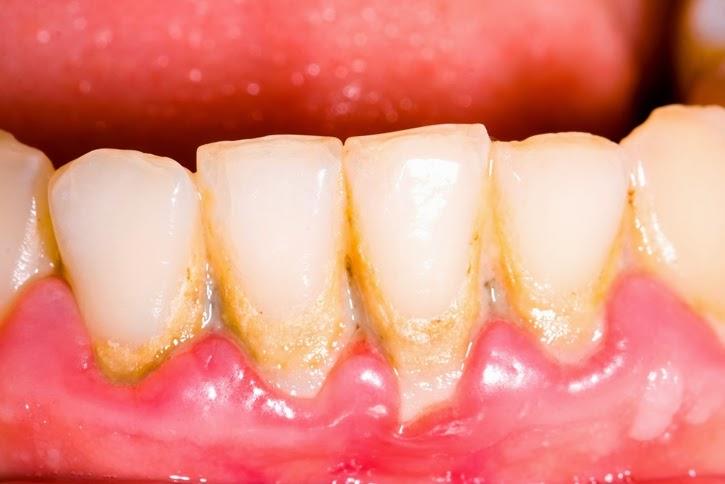 Harga Untuk Membersihkan Karang Gigi Mahalkah Biaya Untuk