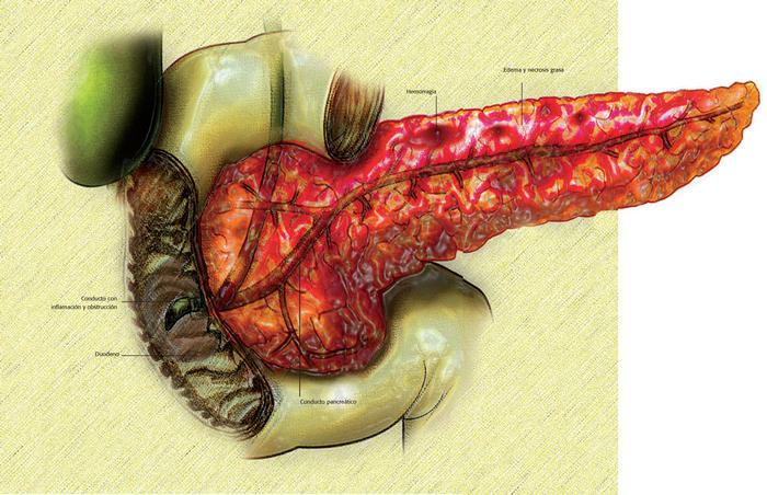 liver transplant news
