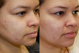 Eliminate Acne Scars