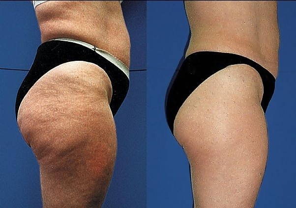 How to get rid of cellulite on back of thighs for Appareil cellulite maison