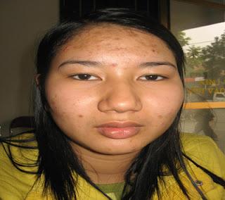 Nguyên nhân gây bệnh viêm da mặt là gì?