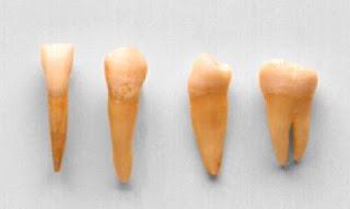 Anclaje de los dientes