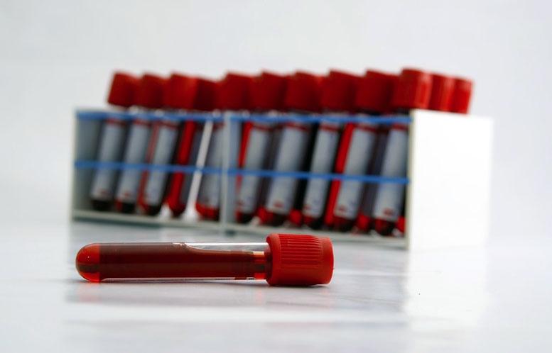 Risultati immagini per fialette sangue