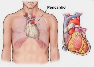 Cirugía del pericardio