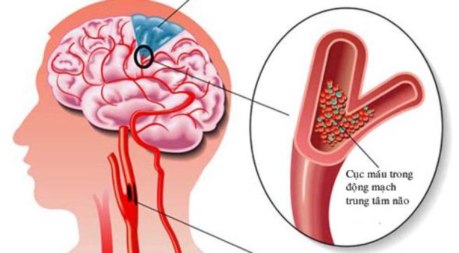 Máu xấu tuần hoàn máu kém có thể gây ra đau đầu chóng mặt