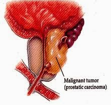 obat penyakit kanker prostat