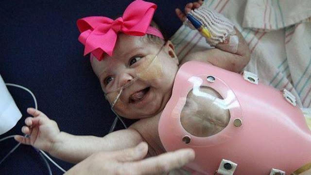 Bayi yang Ceria ini Memiliki Jantung di Luar Tubuh
