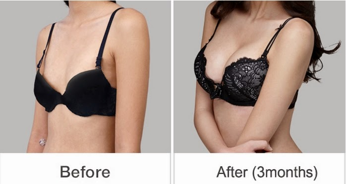 Breast plastic surgery before and after photos-2