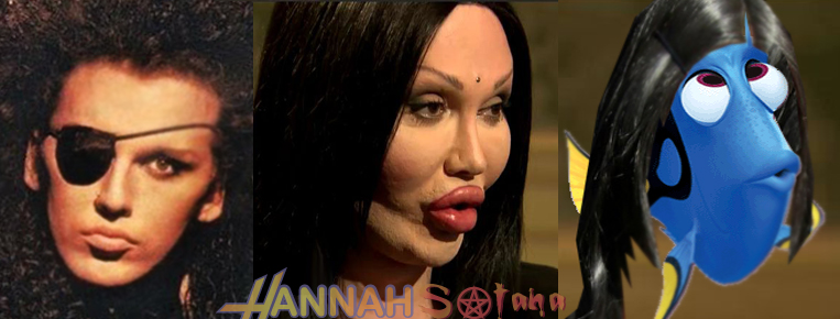 "Pete Burns plastic surgery past present future dory ""finding nemo"""