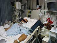Paciente sedado acoplado ao ventilador mecânico