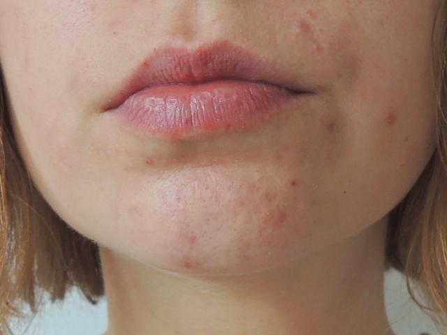 nouveau résultat de mon acné personnelle