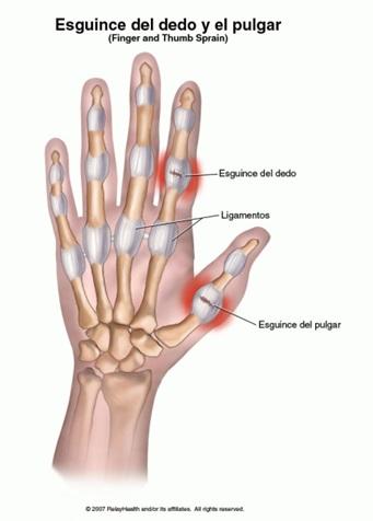 lesiones dedo: