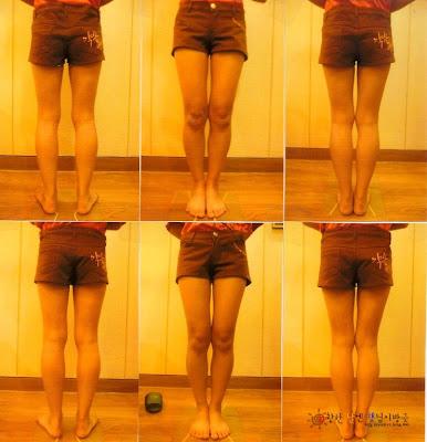 Leg Straightening Care