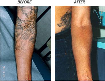 Tattoo Removal Methods   News
