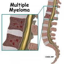Pengobatan Tradisional Multiple Myeloma