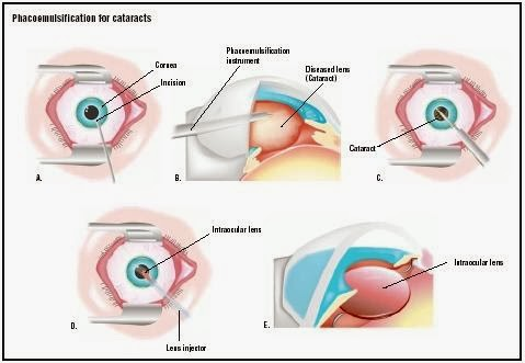Extracapsular Cataract Extraction - procedure, recovery, test ...