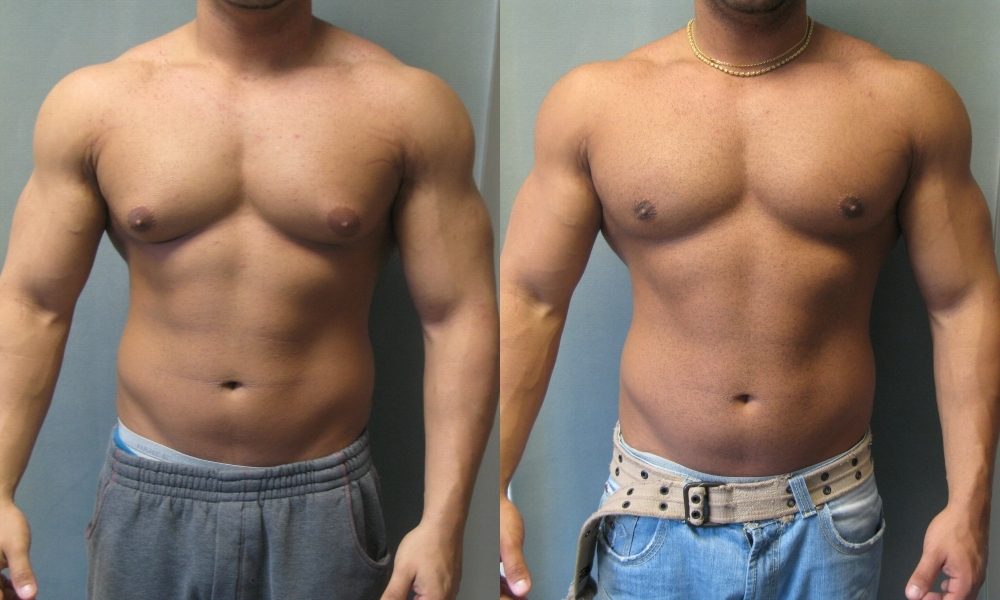 anabolic steroids gynecomastia treatment