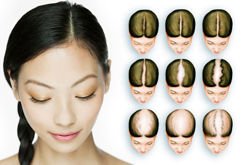 MEASURING WOMEN'S HAIR LOSS