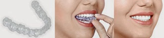 Clear braces - alternative to traditional braces - invisible braces - teeth straightening - sensu - sensu London - Invisalign