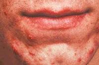حب الشباب حول الفم اسباب علاج