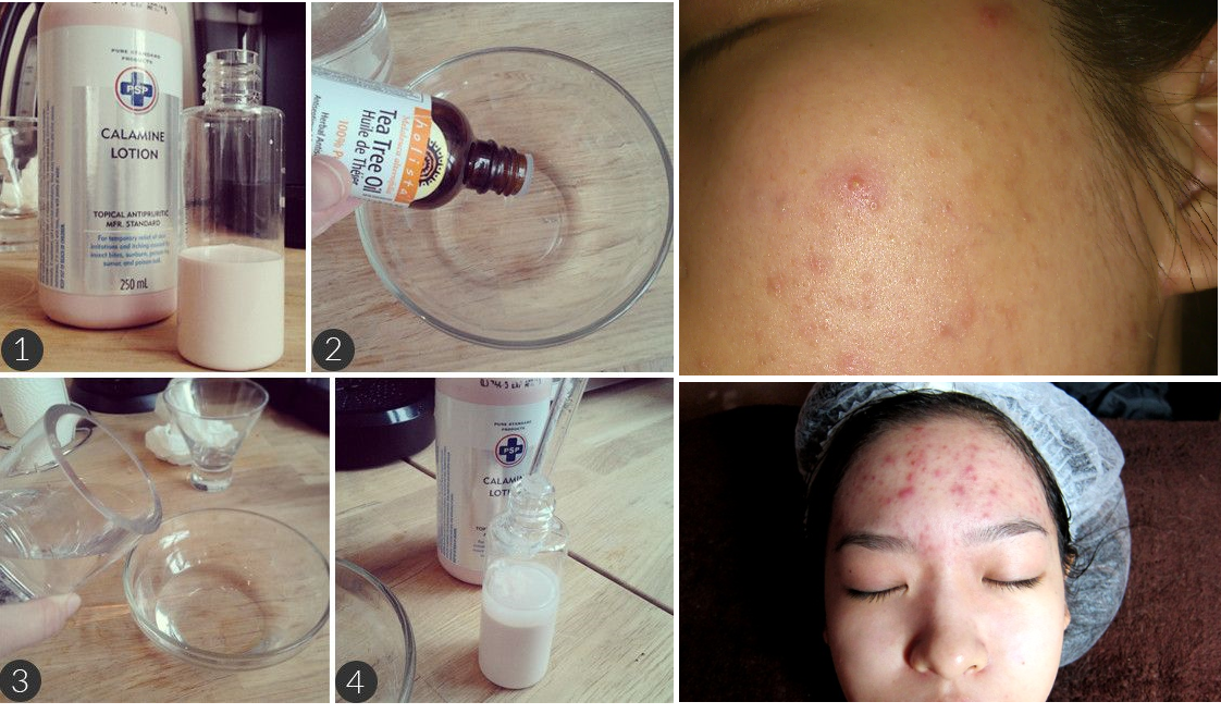 Home remedies for acne treatment overnight
