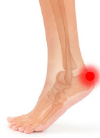 Achilles-tendon-causes